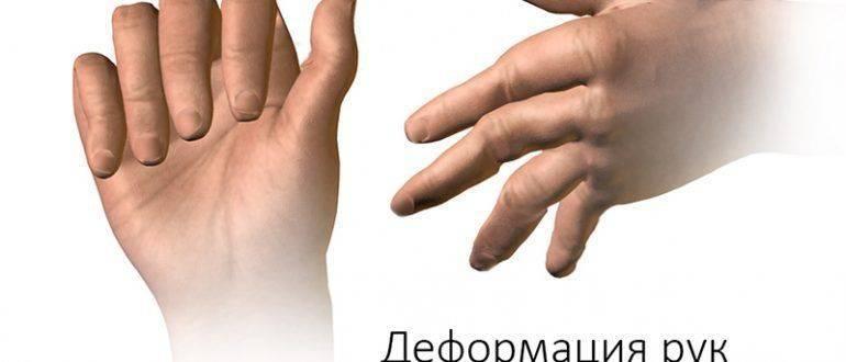 Деформация рук