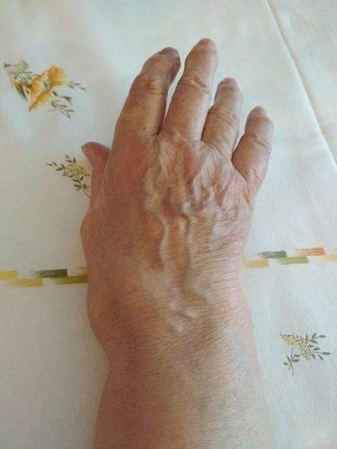 Ревматоидный артрит на руке