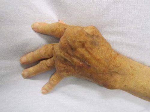 Суставы на руках при артрите