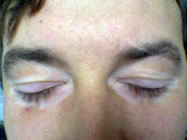 Причина появления и лечение белых пятен на коже после загара