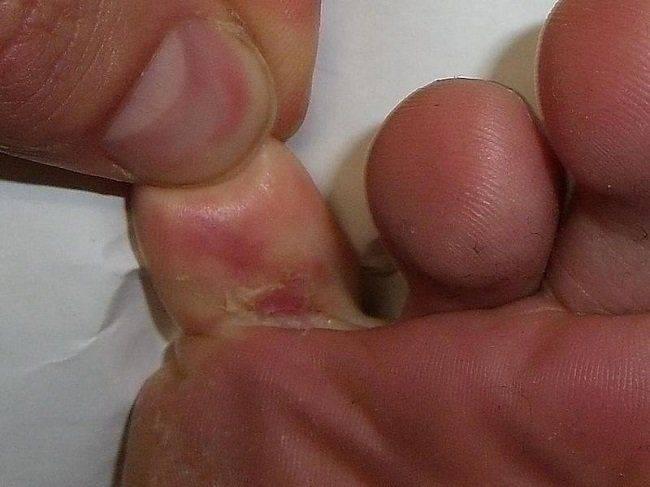 Кожный грибок или микоз