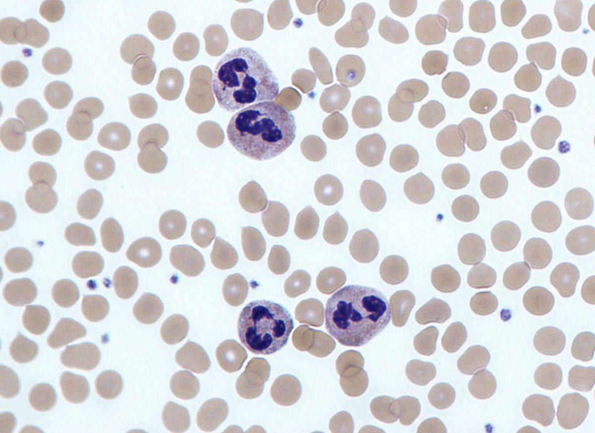Что означает повышенное содержание лейкоцитов в моче у женщин?