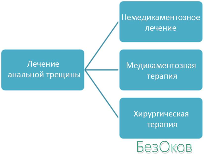 Схема: виды лечения анальной трещины