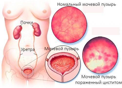 Нормальный мочевой пузырь и цистит