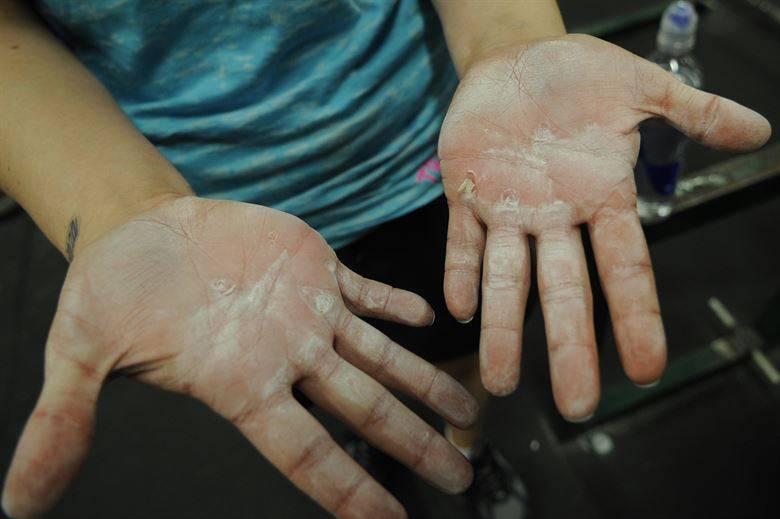 Шелушится кожа на руках у взрослого
