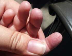 Шелушится кожа рук и пальцев рук у ребенка