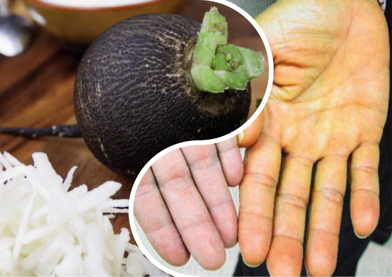 Зеленая редька - польза и вред для здоровья организма