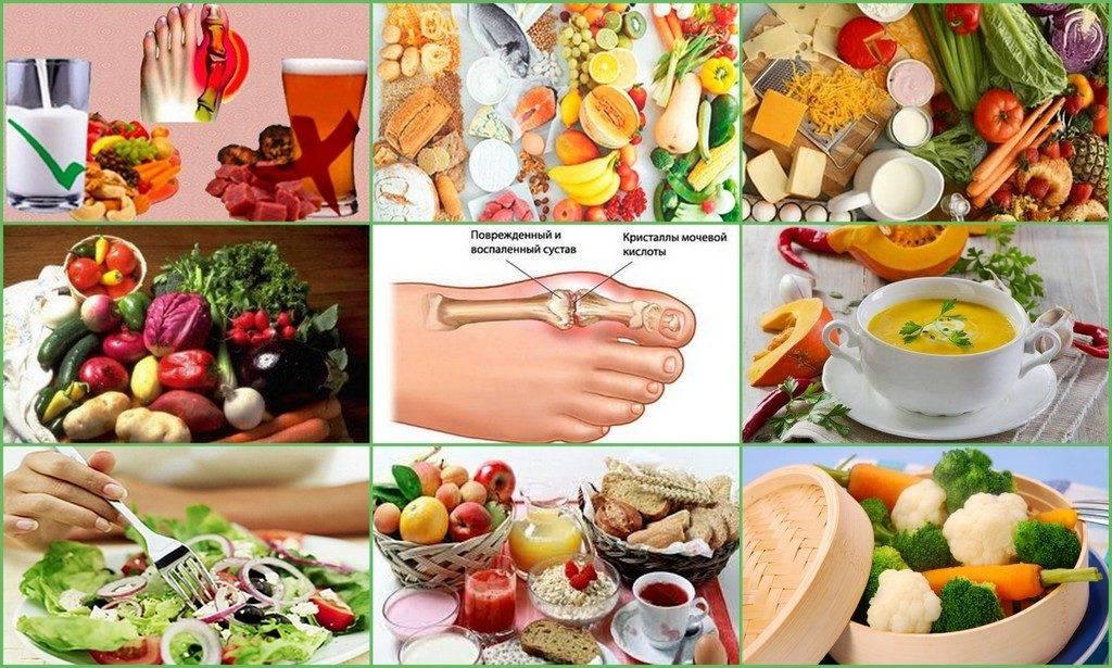 Какие продукты нельзя, а какие можно есть при подагре